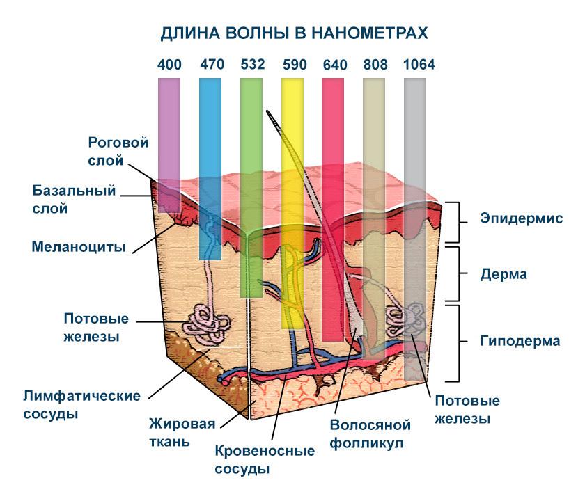 Диодный лазер Красноярск